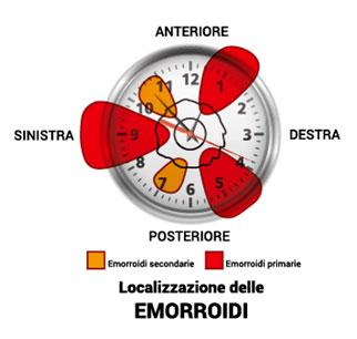Come applicare menovazin a emorroidi - Le emorroidi esterne quello che è questo